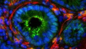 Darmschleimhautzellen unter Mikroskop
