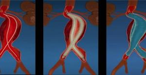 Gefäßprothese