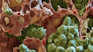 Rasterelektronenmikroskop Lungenmetastase